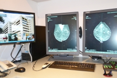 Estación de procesamiento de imágenes diagnósticas (mamografía)